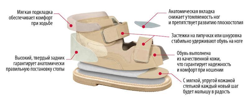 Параметры современной профилактической детской ортопедической обуви